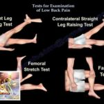 Tests For Examination Of Low Back Pain – Everything You Need To Know – Dr. Nabil Ebraheim